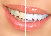 Teeth Whitening Livermore CA